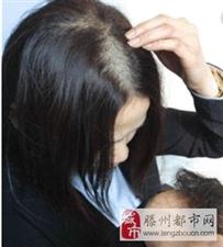 最近脱发严重,吃什么东西能防止脱发