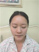 鼻综合三个月记录贴,记录变美的过程
