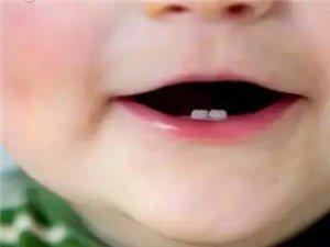 孩子乳牙掉了,别再傻傻丢了,储存下来可救命!