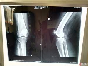 腰膝剧痛架进来,三分钟治疗走出去