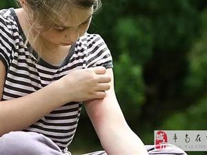 被蚊子叮了不用擦药,涂这个马上止痒,不花一分钱!