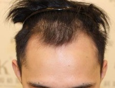 南京植发哪里好?讲述我在南京求医的痛苦经历