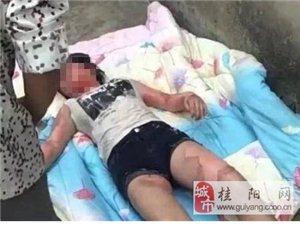 17岁少女正午睡 被人用开水灌进嘴
