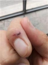男孩被老鼠咬伤,保险公司:动物咬伤不在理赔范围