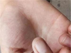 男孩被老鼠咬伤,保险澳门威尼斯人游戏:动物咬伤不在理赔范围