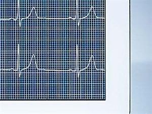 健康天天测 心电图正常就等于没心脏病吗?