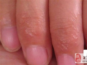 手上长小水疱千万别挑破,用它擦一擦,止痒防复发