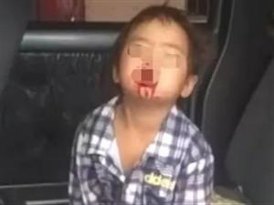 宜宾四岁小女孩,下嘴唇竟然被狗咬掉,帮帮可怜的她吧