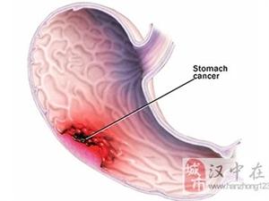"""""""胃癌候选人""""有6大征兆 记住五条保护胃肠道"""