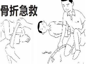 【安全知识】骨折现场急救处理指南