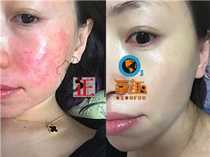 激素脸要怎么治疗效果好呢/来看看平平教你使用修正氧趣臭氧油搞定激素脸