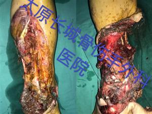 历时13小时,成功实施两例肢体离断手术――太原长城骨伤手外科医院再创失