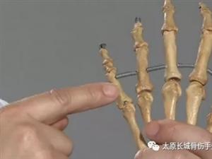 手部指骨骨折治疗方法有哪些