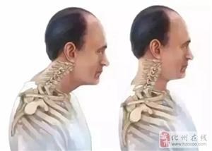 化州人快看,脖子出现这个变化,再不重视就晚了!