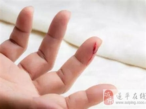 什么伤口适合用创可贴?创可贴能贴多久?