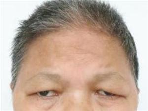 盐亭五旬女子陈桂英被救助,失明,丈夫叫许友第,女儿叫许小芳