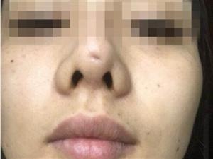 """假体滑出鼻尖 90后姑娘隆鼻整成了""""猪鼻子"""""""