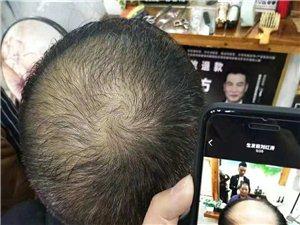 御发世家生发连锁免费治脱发,寻找前50名脱发患者可免费生发
