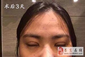 女神养成记―双眼皮