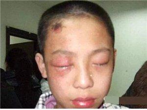 20分�孩子眼珠被溶化!�@�|西每家都有,太可怕了!