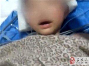 6岁娃走亲戚遭野狗撕咬,全身37处伤