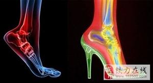 长期穿高跟鞋的女人,真的有气质吗?这几个后果可能很少人知道!