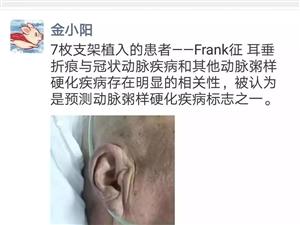 耳垂上有折痕可能有冠心病?心内科医生:这回是真的!