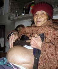 惊!九旬老太腹中竟存在58年的胎儿