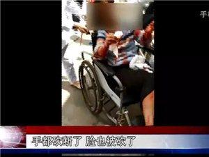 宜宾90后女子遭丈夫家暴破相,6旬老父阻挡被捅心脏!