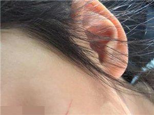 心疼!幼儿园多名孩子脸被划伤!看到监控后家长愤怒了