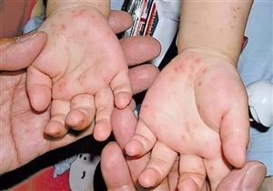 有孩子的家长请注意:这种病进入高发期,患病要及时隔离!