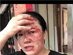 霍邱亚一金店老板殴打同行梦金园店长,行为极其恶劣!