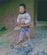 孩子智力有问题 家长怕出意外才用绳子拴他