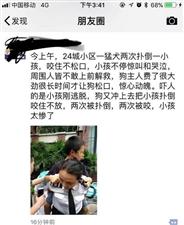 13岁少年在小区内被咬伤 伤人犬为主城区禁养犬