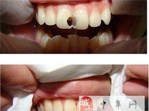 補牙都有哪些辦法?