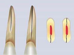 牙齒出現隱性斷裂該怎么辦?