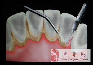 牙齒有結石是很不好的