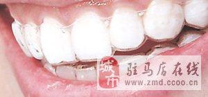 全透明隱形牙套矯正效果好嗎?