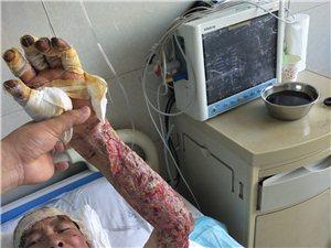 天降横祸,家母做饭时意外晕倒烧伤,恳请好心人救助