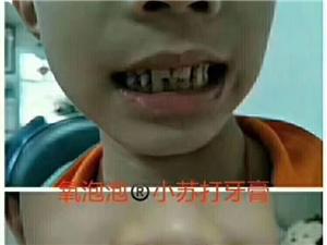氧泡泡 祛渍、除菌、杀毒 清洁品 小苏打牙膏而且��他估�看著�眼 产品