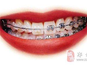 鄭州牙科醫院哪里好,鄭州美奧口腔牙齒矯正價格表
