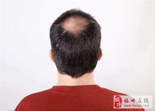 脂溢性脱发为什么难治