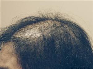 女生头发稀疏加密效果好吗