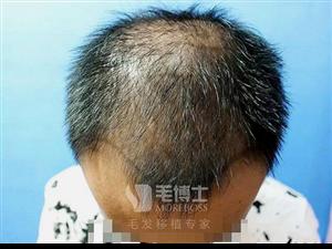 厦门植发效果一般维持多少年