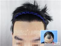 福州种头发效果怎么样