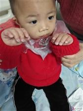 我小孩打手足口预防针后,第二天就不对正,发烧口舌生苍,确诊是