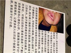 滨州一棉幼儿园出事了,孩子磕掉两颗牙,负责人说没事?