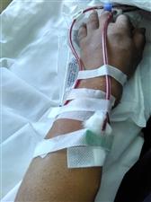 患有尿毒症透析四年了患者苏强强