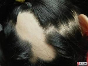 脱发、皮肤病专科