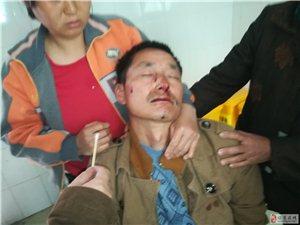 旺苍一农户为讨600元工钱鼻骨被打骨折